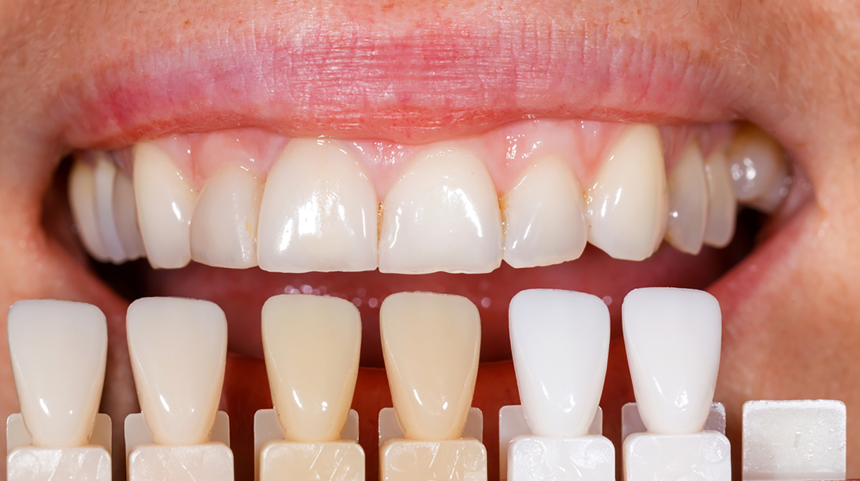 carillas dentales en la Clínica Moyúa