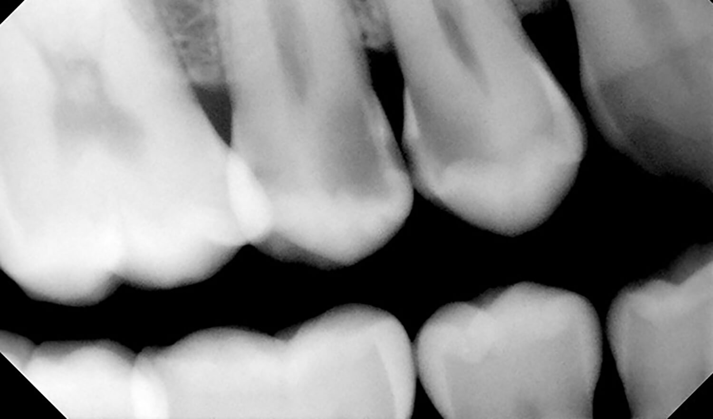Clínica dental Betaginn Bilbao
